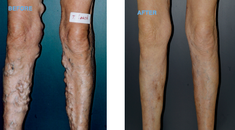 the leg vein clinic